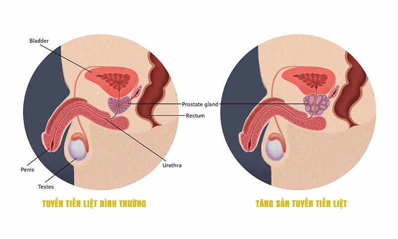 Tuyến tiền liệt bình thường và tuyến tiền liệt bị tăng sản