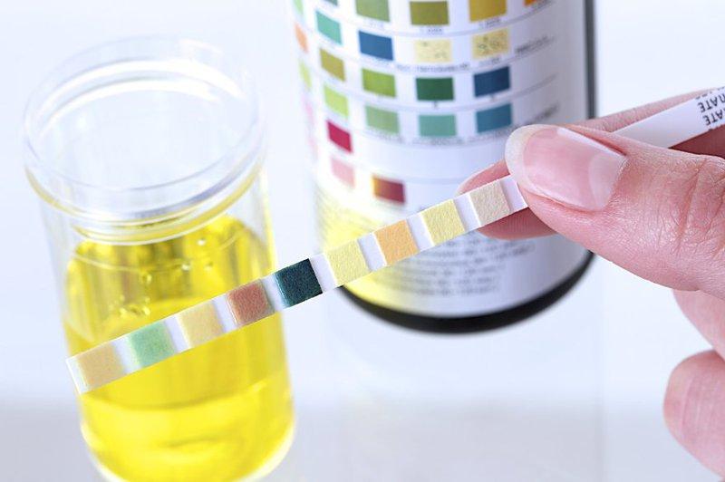 Xét nghiệm nước tiểu sẽ giúp tìm ra chỉ số protein