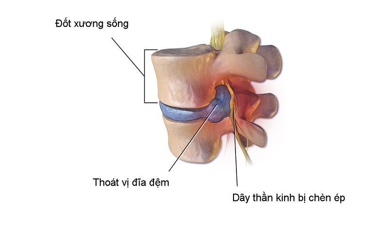 Chụp MRI thoát vị đĩa đệm nhằm phát hiện chính xác những tổn thương ở cột sống