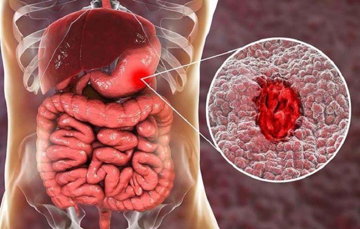 Xuất huyết dạ dày là căn bệnh nguy hiểm cần được điều trị sớm