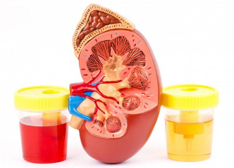 Bể thận bị viêm ảnh hưởng lớn đến hoạt động loại trừ chất thải trong cơ thể