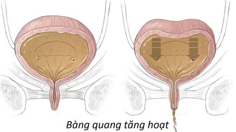 Bàng quang bị viêm làm nước tiểu hôi, khi đào thải có hiện tượng buốt