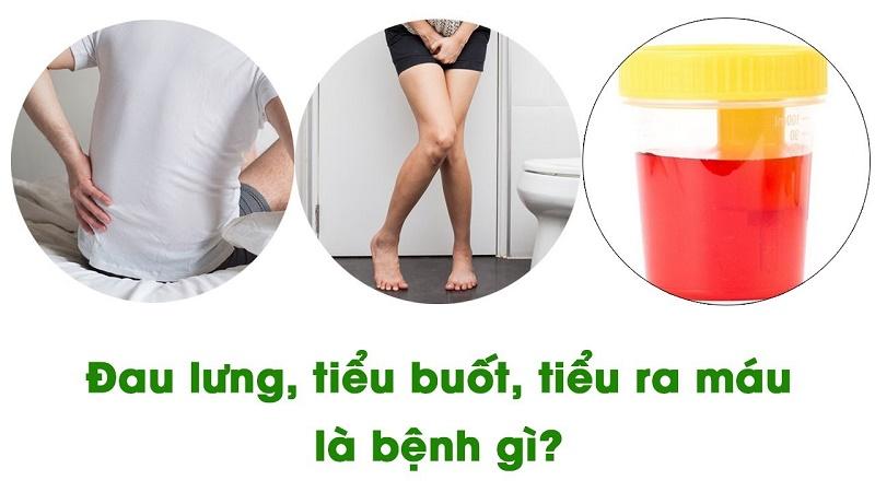 Bị tiểu ra máu thường kèm theo cảm giác đau lưng, tiểu buốt