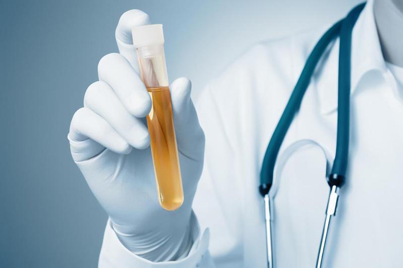 Xét nghiệm nước tiểu để chẩn đoán bệnh