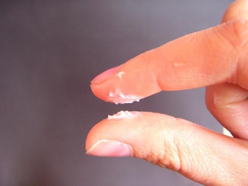 Dấu hiệu nhận biết nấm Candida ở chị em phụ nữ