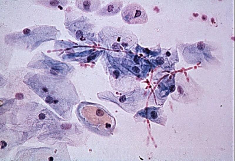 Các vi khuẩn có hại gây viêm âm đạo