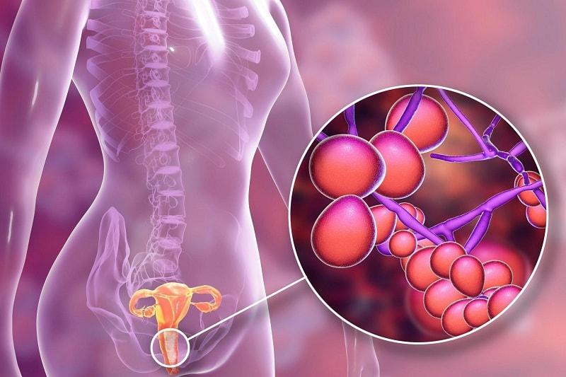 Viêm âm đạo do vi khuẩn là bệnh lý phụ khoa thường gặp