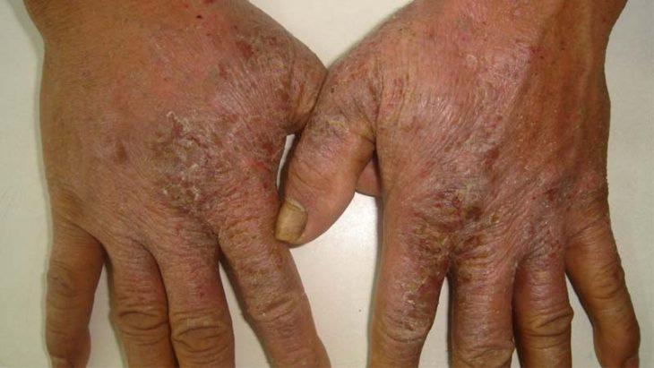Viêm da cơ địa ở người lớn giai đoạn mãn tính