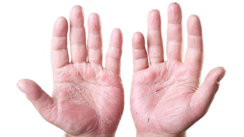 Một số hình ảnh viêm da cơ địa ở tay