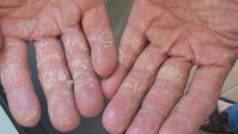 Viêm da cơ địa ở tay bị viêm nhiễm nặng