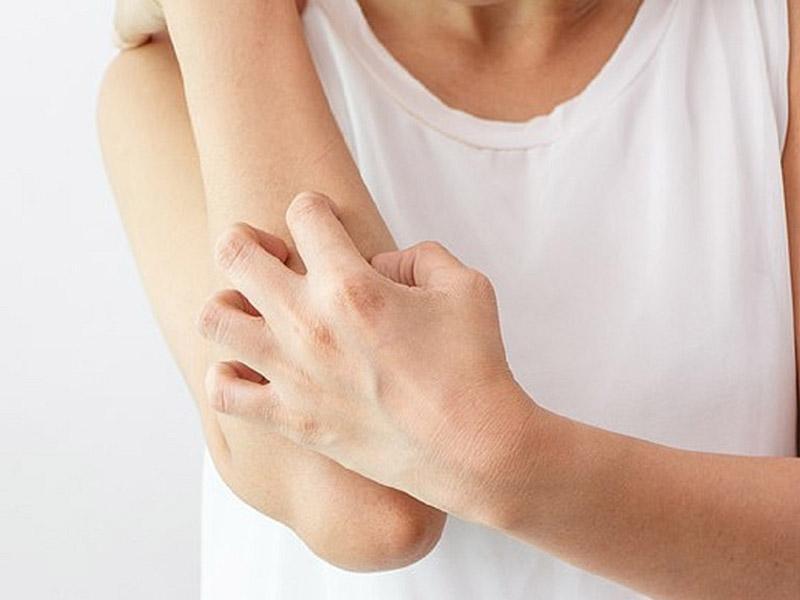 Viêm da thần kinh gây ngứa ngáy dữ dội trên da