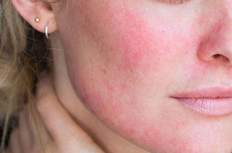 Viêm da tróc vảy là hiện tượng một số bộ phận có sự rối loạn tái tạo thượng bì.
