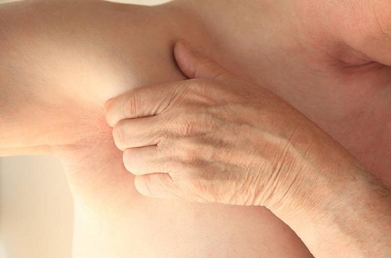 Các nguyên nhân gây viêm da vùng nách
