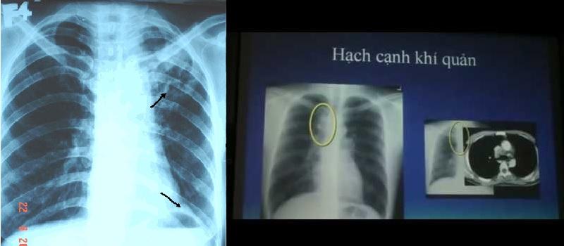 Một kết quả chụp CT của người bị ho lao