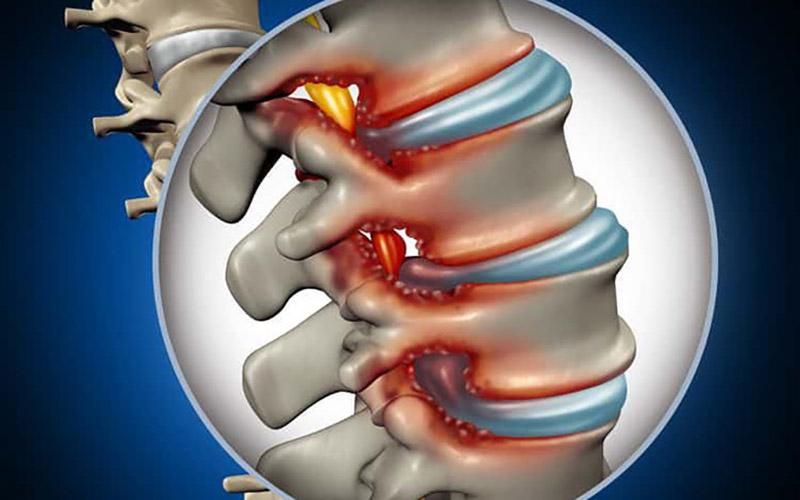 Gai cột sống: Nguyên nhân, triệu chứng và cách điều trị