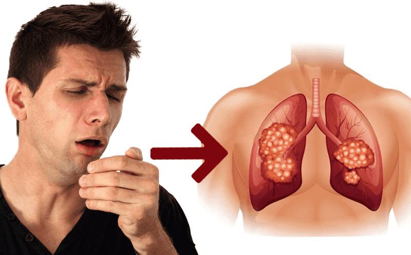 Ho dai dẳng kéo dài có thể là dấu hiệu của bệnh ung thư phổi