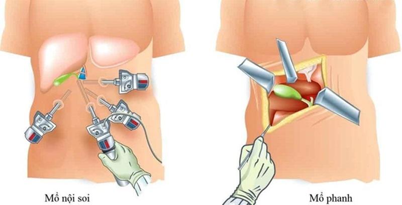 Mổ sỏi túi mật là một trong những biện pháp chữa bệnh sỏi túi mật