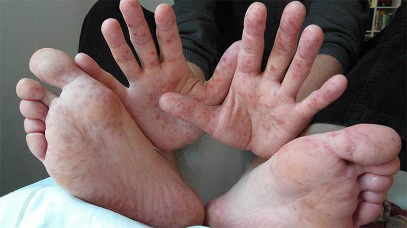 Ngứa chân, tay là triệu chứng ngoài da thường gặp