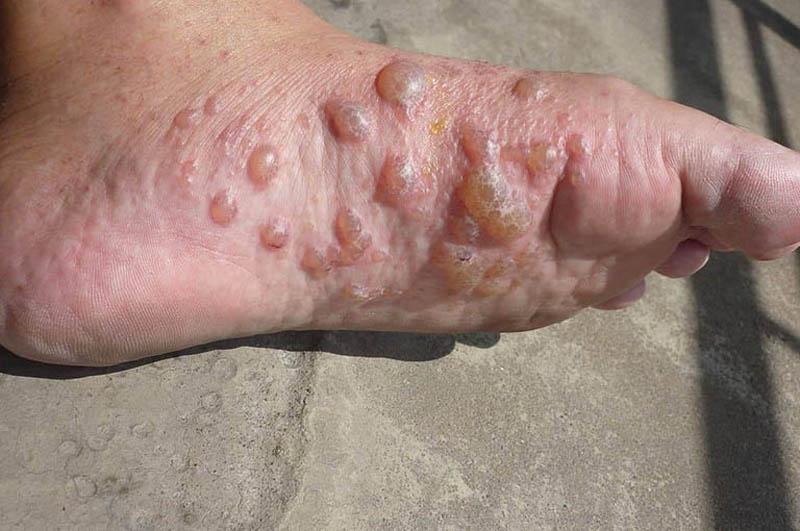 Ngứa chân nếu không được điều trị tốt dễ dẫn đến nguy cơ biến chứng nguy hiểm