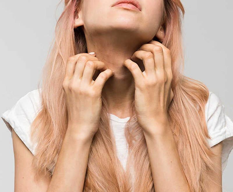 Tuyệt đối không gãi vào vùng da bị bệnh có thể khiến bệnh nặng hơn