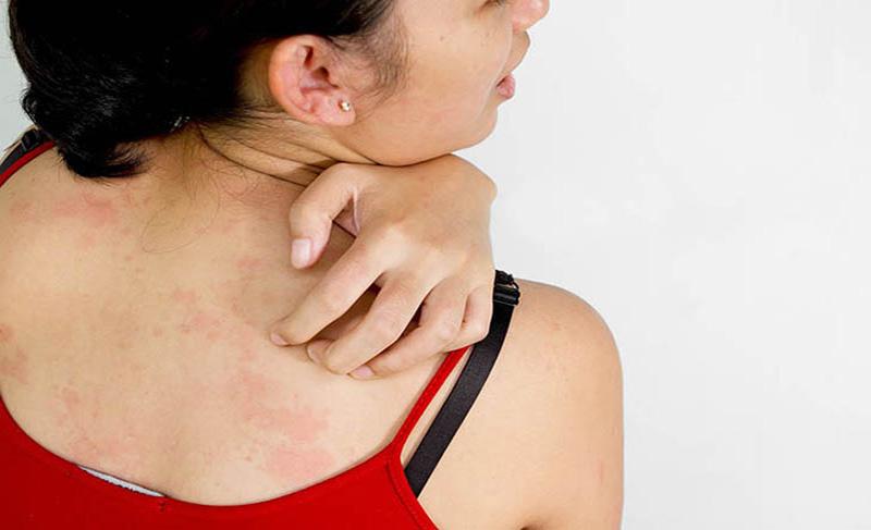 Ngứa ngáy khó chịu là dấu hiệu điển hình của bệnh