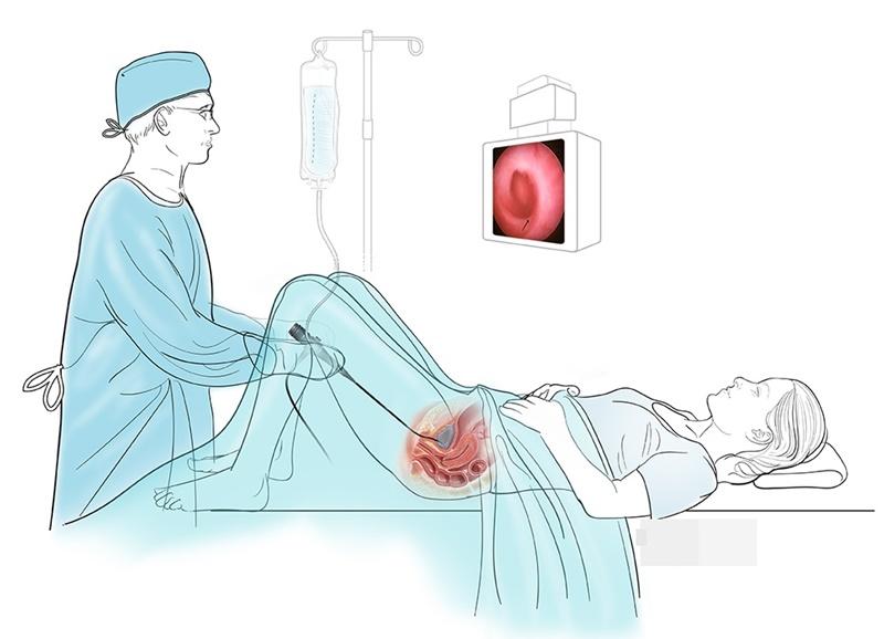 Người bệnh không được ăn uống vào đêm trước ngày thực hiện nội soi bàng quang