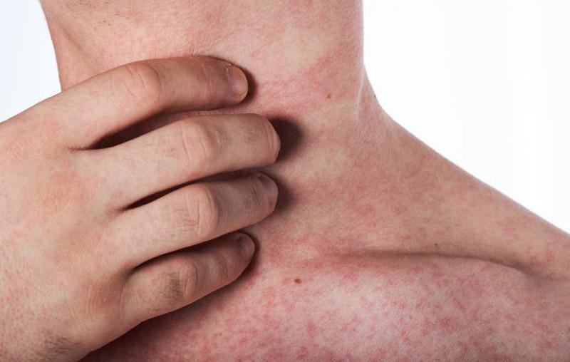 Sốt xuất huyết bị ngứa không nguy hiểm nhưng cần được điều trị sớm
