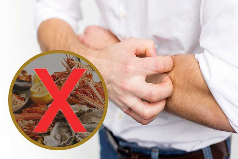 Tuyệt đối không sử dụng các thực phẩm dễ gây kích ứng, dị ứng