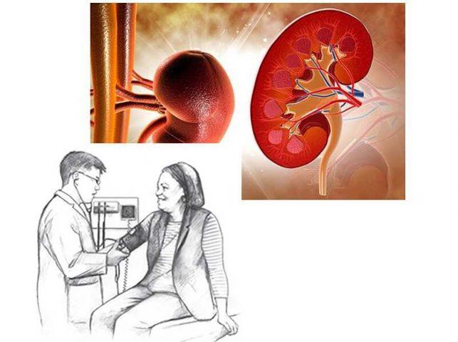 Suy thận gây tăng huyết áp: Nguyên nhân, cơ chế và cách điều trị