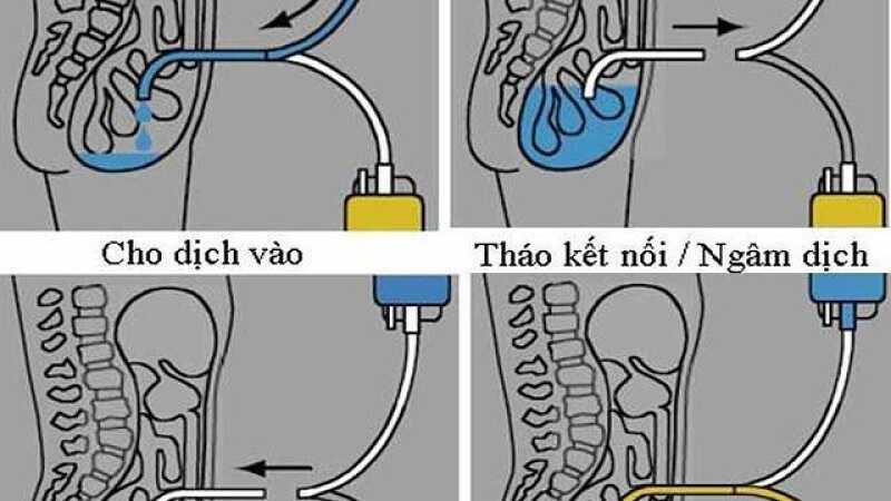 Hình ảnh mô phỏng quá trình lọc màng bụng