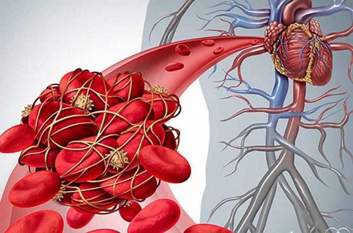 Suy thận trước thận là bệnh gì? Cơ chế bệnh sinh và hướng điều trị