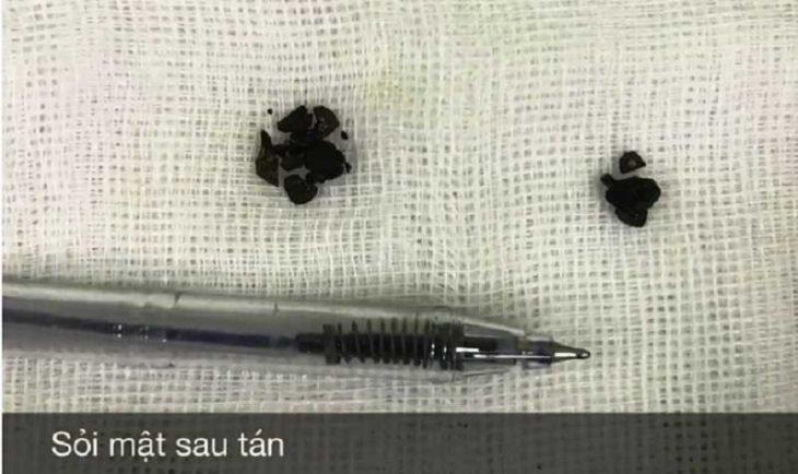 Tán sỏi túi mật qua da bằng laser và những điều người bệnh cần biết