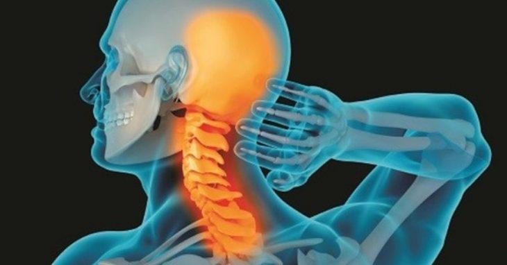 Thoái hóa đốt sống cổ gây thiếu máu não xảy ra khi người bệnh không chú ý đến nguyên nhân gây bệnh
