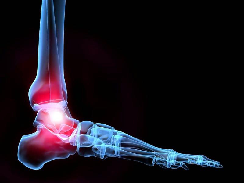 Thoái hoá khớp cổ chân: Nguyên nhân và cách điều trị