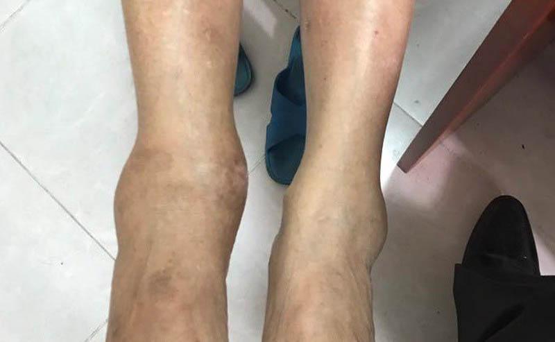 Thoái hoá khớp cổ chân cần được kiểm soát kịp thời và đúng cách
