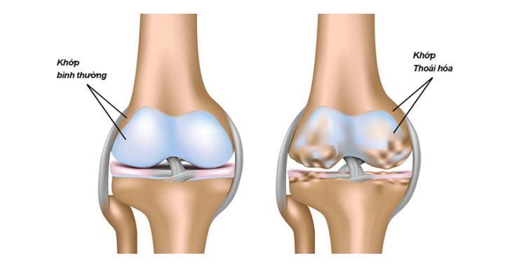 Thoái hóa khớp gối là bệnh lý xương khớp xảy ra phổ biến ở người cao tuổi