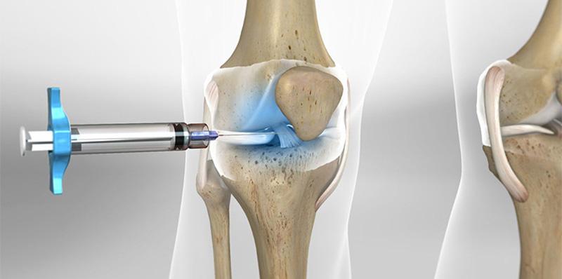 Bác sĩ có thể chữa thoái hóa khớp bằng liệu pháp tế bào gốc