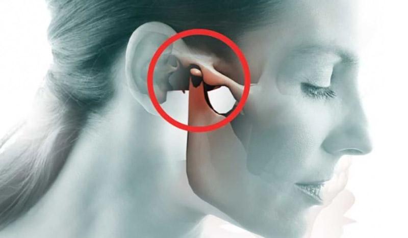 Thoái hoá khớp thái dương hàm: Nguyên nhân, triệu chứng và cách điều trị