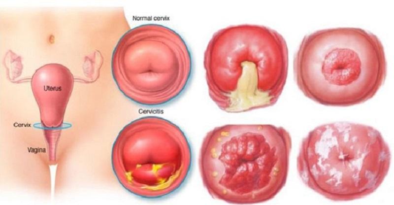 Thời gian điều trị viêm lộ tuyến cổ tử cung thích hợp nhất thường rơi vào giai đoạn đầu