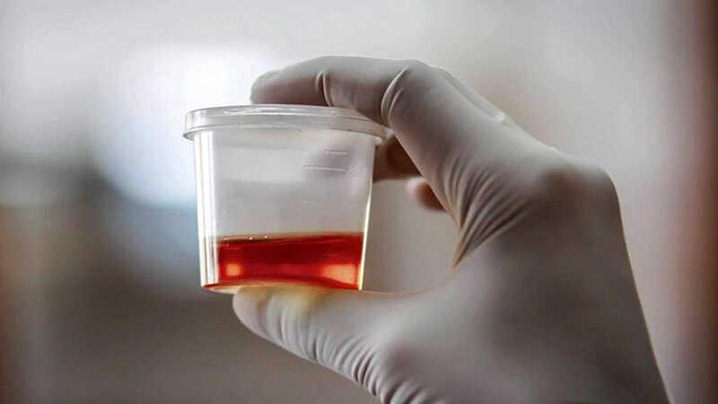 Tiểu buốt có thể cảnh báo bệnh lý nguy hiểm xảy ra ở bàng quang, thận hoặc niệu đạo