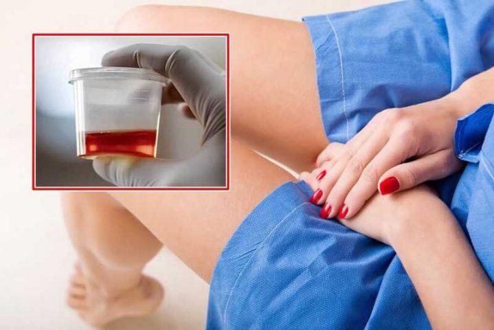 Không sử dụng thuốc tùy tiện khi chưa tìm ra nguyên nhân tiểu buốt ra máu