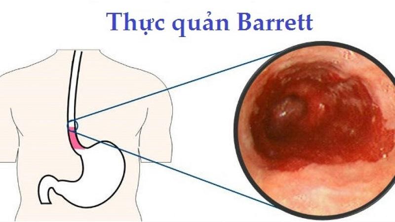 Barrett thực quản là một trong những biến chứng nguy hiểm nhất khi tình trạng trào ngược gây khó thở diễn ra lâu dài.