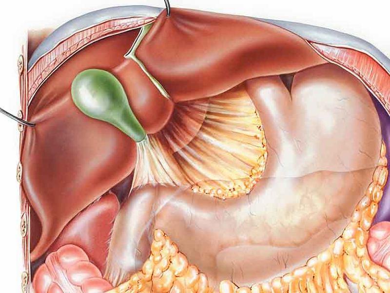 Chế độ ăn uống không khoa học là nguyên nhân gây trào ngược dịch mật