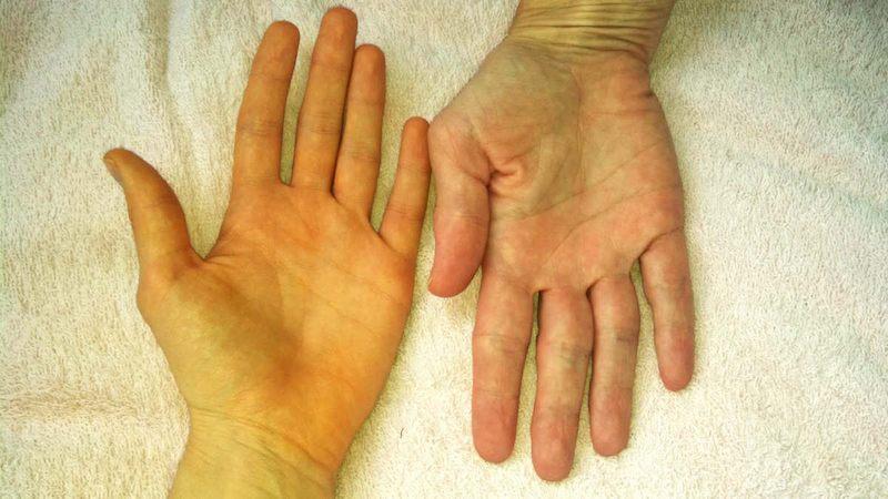 Vàng da là một trong những triệu chứng dễ nhận biết nhất khi mắc bệnh
