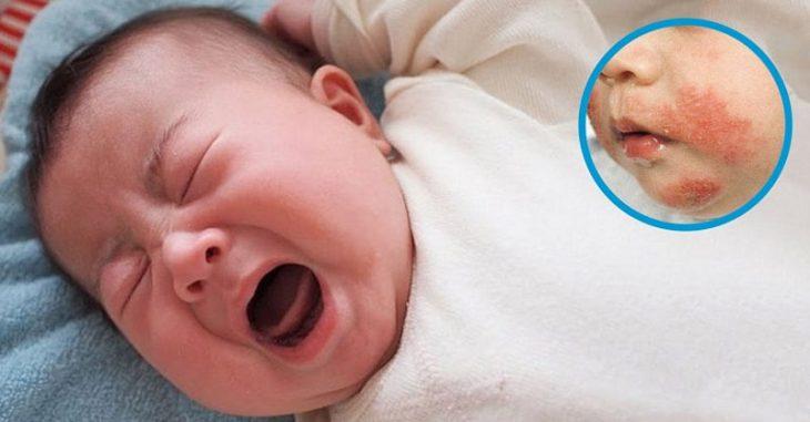 Triệu chứng của bệnh là trên da xuất hiện các mụn gây ngứa ngáy, khó chịu