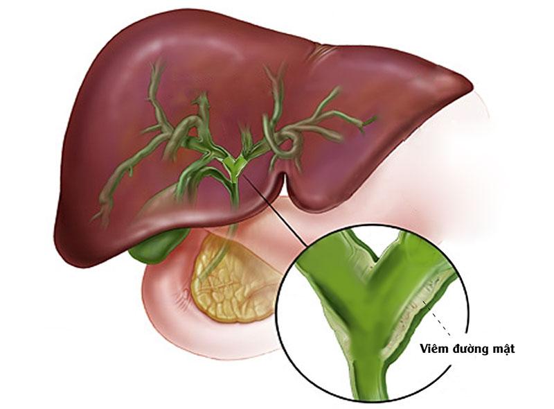 Viêm đường mật là một biến chứng khác của bệnh sỏi mật