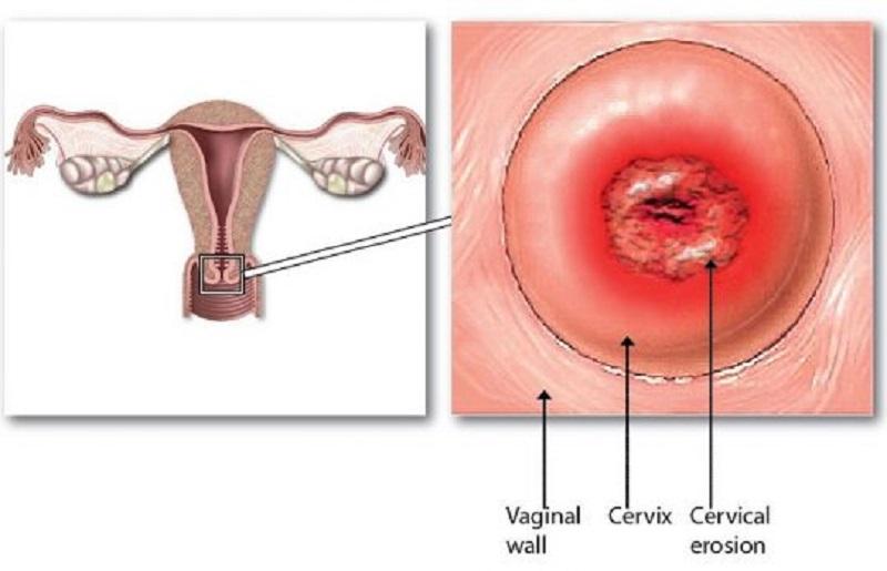 Tổn thương gây ra do viêm lộ tuyến cổ tử cung có màu đỏ và dạng sủi được gọi là viêm lộ tuyến dạng sùi.