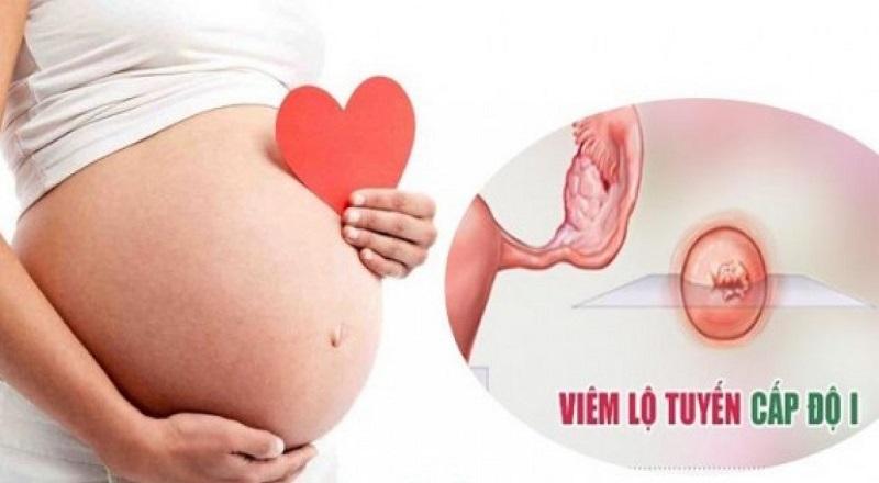 Viêm lộ tuyến cổ tử cung là tình trạng viêm nhiễm phổ biến, xảy ra ở 70% phụ nữ Việt Nam.