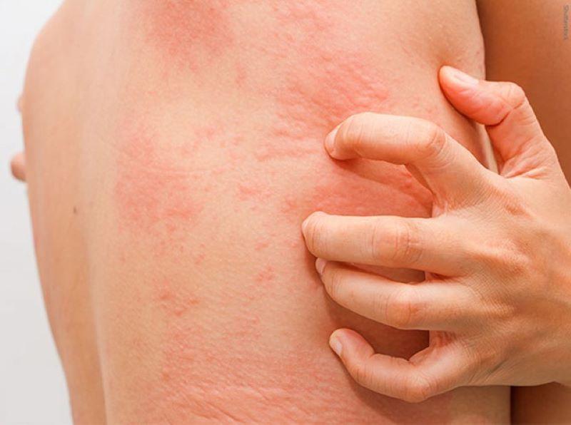 Theo y học cổ truyền gai ma vương có thể dùng để trí ngứa và lở loét trên da