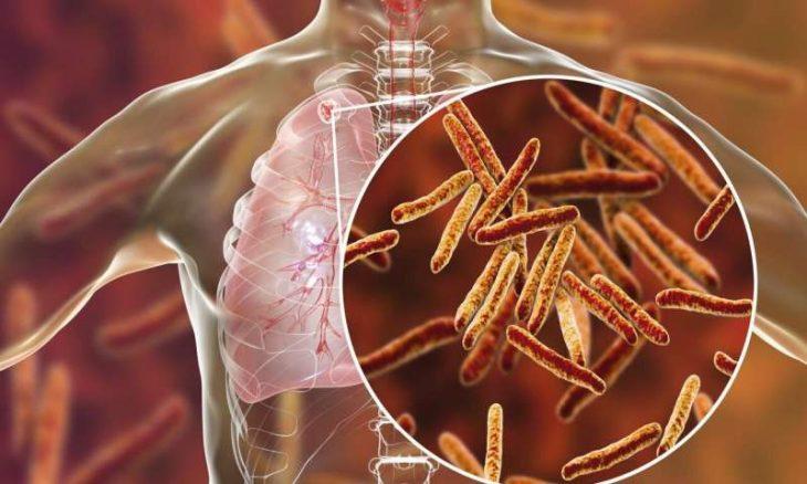 Bệnh lao phổi là bệnh phổ biến nhất khi mắc ho lao